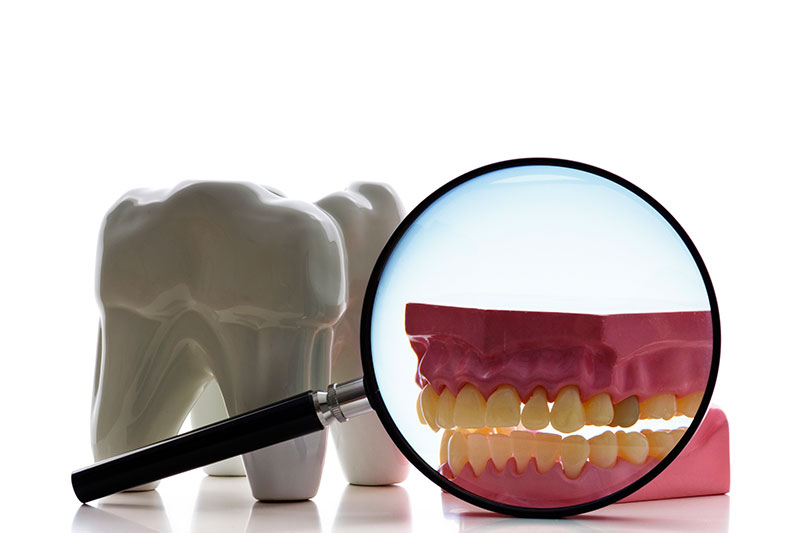 Root Canal in Milpitas